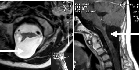 Рисунок 2. МРТ-исследование после операции.