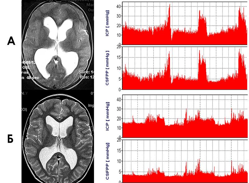 Рисунок 2. Нормотензивная гидроцефалия в сочетании с умеренно выраженными атрофией мозга и краниоцеребральной диспропорцией.