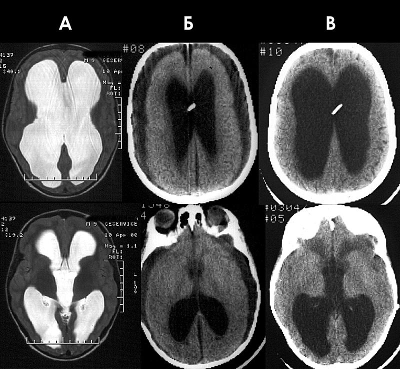 Рисунок 3.  Гипертензивная гидроцефалия с резко выраженными атрофией мозга и краниоцеребральной диспропорцией.