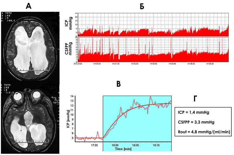 Рисунок 4. Атрофия мозга и краниоцеребральная диспропорция. Состояние после тяжелой черепно-мозговой травмы.