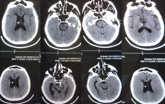 Рисунок 3. КТ-исследование головного мозга после операции: правильное положение катетера системы Омайя