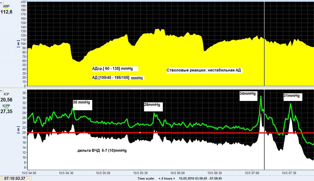 Рисунок 1. Тренды АД среднего и ВЧД в первые сутки после оперативного вмешательства. Вверху тренд среднего артериального давления (АВР), а внизу тренды ВЧД в супра(ICP)– и субтенториальном пространствах(ICPP).