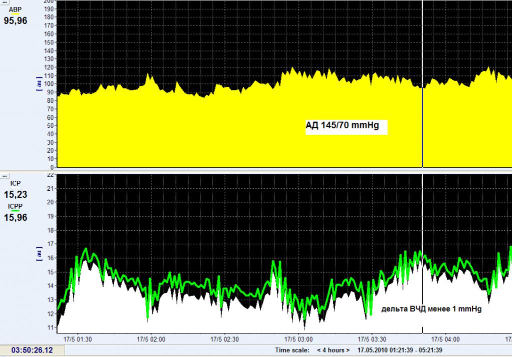 Рисунок 3.Тренды АД среднего и ВЧД на 4 сутки после оперативного вмешательства. Как видно из тренда гемодинамика стабильная, ВЧД в супратенториальном и субтенториальном пространствах нормализовались ( < 20 mmHg), градиент ВЧД менее 1 mmHg.