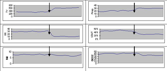 Тренды респираторного мониторинга у пациентки ASV-nonresponder со сниженным компланйосм грудной клетки (стрелочкой обозначен момент переключения режима на PS)